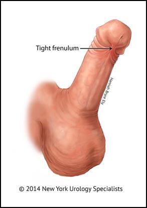 penis frenectomie
